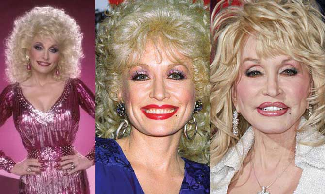 Dolly Parton Plastic Surgery Before and After 2019