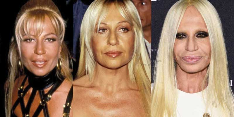 Donatella Versace Plastic Surgery Before and After 2018