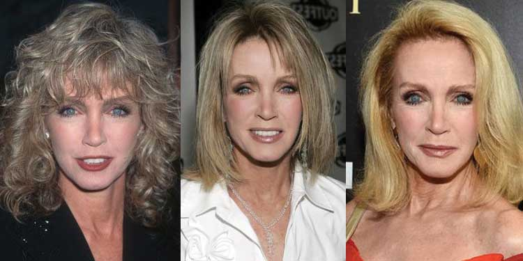 Donna Mills Plastic Surgery Before and After 2018