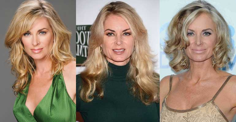 Eileen Davidson Plastic Surgery Before and After 2018