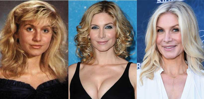 Elizabeth Mitchell Plastic Surgery Before and After 2018
