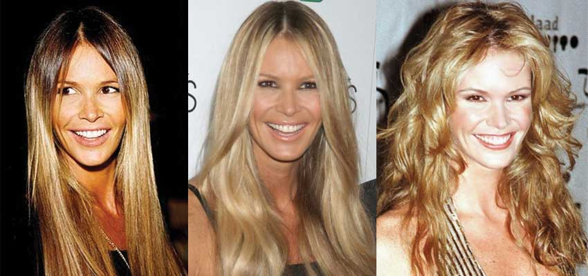 Elle Macpherson Plastic Surgery Before and After 2018