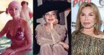 Elsa Patton Plastic Surgery