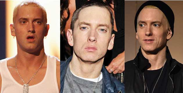 Eminem Plastic Surgery Before and After 2018
