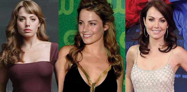 Erica Durance Plastic Surgery Before and After 2019