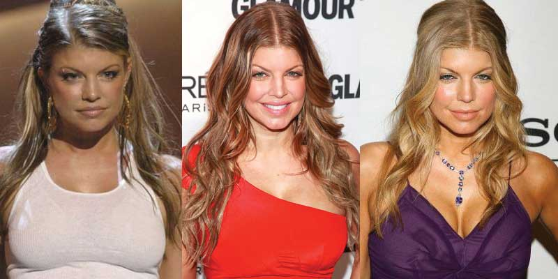 Fergie Plastic Surgery Before and After 2020