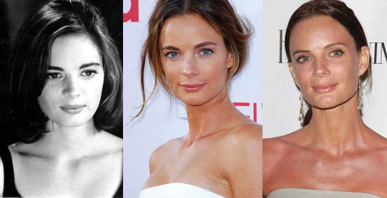 Gabrielle Anwar Plastic Surgery Before and After 2019