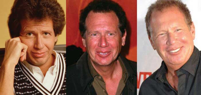 garry shandling plastic surgery