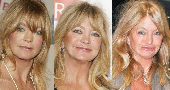 Goldie Hawn Plastic Surgery Before and After 2020