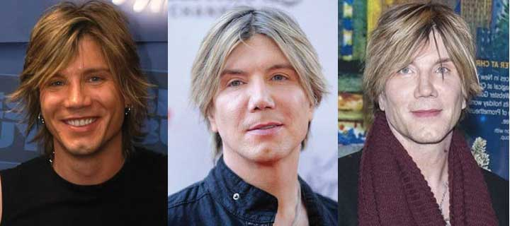 Goo Goo Dolls Lead Singer Plastic Surgery Before and After 2018
