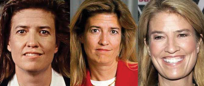 Greta Van Susteren Plastic Surgery Before and After 2018