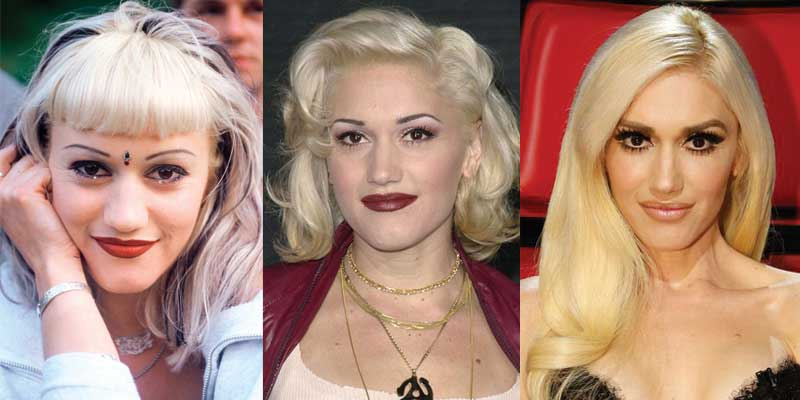 Gwen Stefani Plastic Surgery Before and After 2019