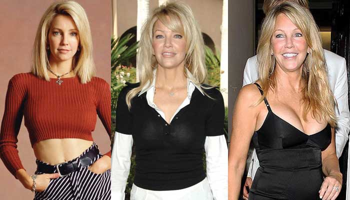 Heather Locklear Plastic Surgery Before and After 2017