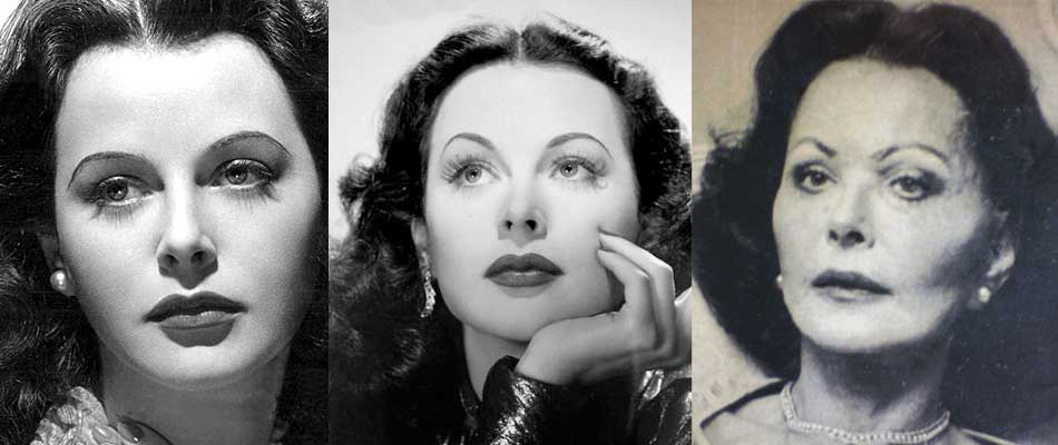 Hedy Lamarr Plastic Surgery Before and After 2017