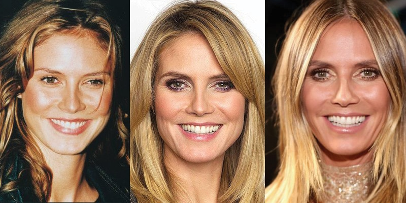 Heidi Klum Plastic Surgery Before and After 2020