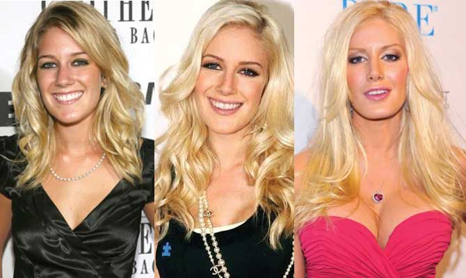 Heidi Montag Plastic Surgery Before and After 2018