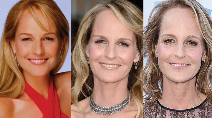 Helen Hunt Plastic Surgery Before and After 2021