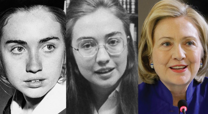 Hillary Clinton Plastic Surgery Before and After 2019