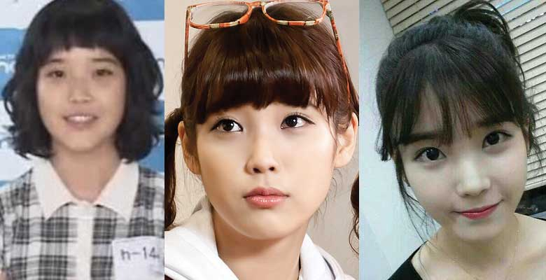 IU Plastic Surgery Before and After 2017