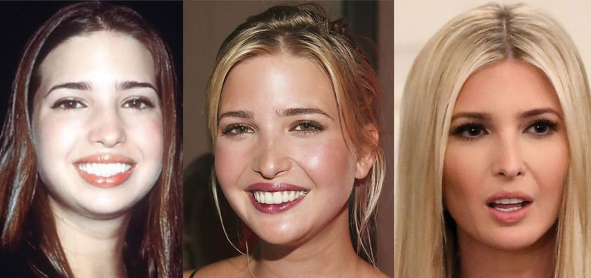 Ivanka Trump Plastic Surgery Before and After 2019