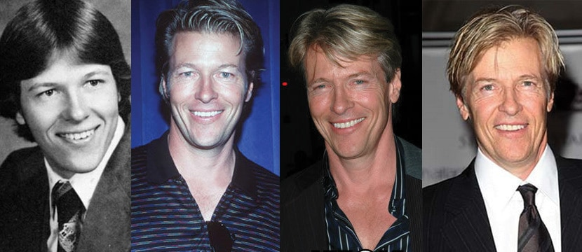 Jack Wagner Plastic Surgery Before and After 2019