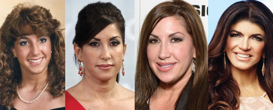 Jacqueline Laurita Plastic Surgery Before and After 2019