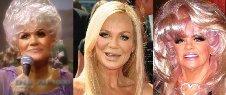 Jan Crouch Plastic Surgery Before and After 2019