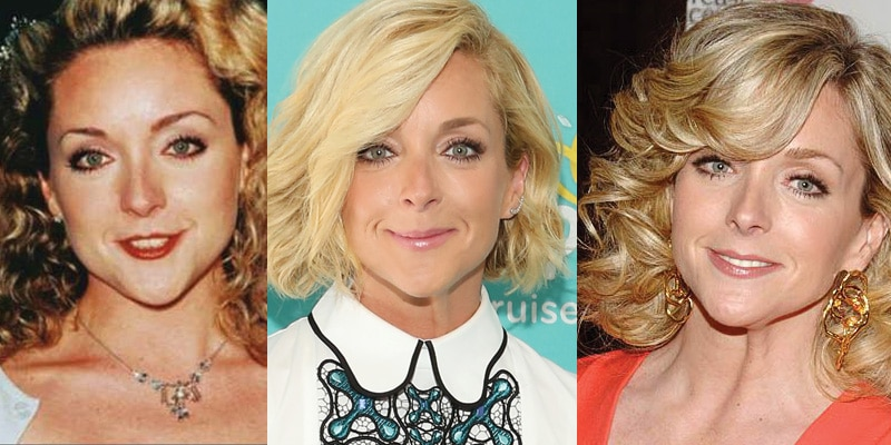 Jane Krakowski Plastic Surgery Before and After 2021
