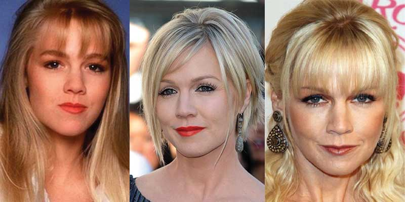 Jennie Garth Plastic Surgery Before and After 2017