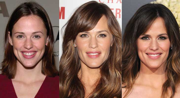 Jennifer Garner Plastic Surgery Before and After 2017