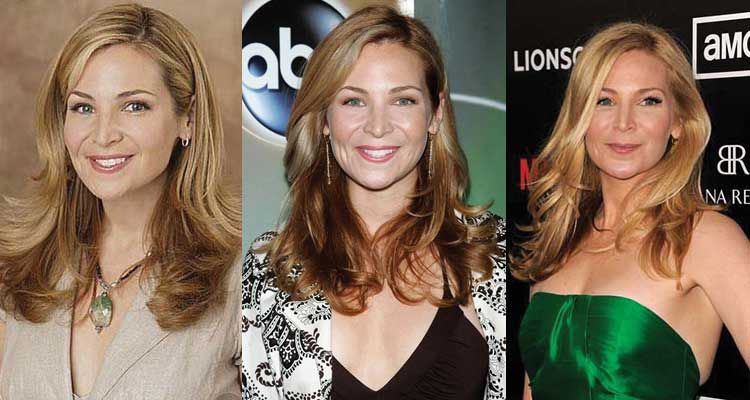Jennifer Westfeldt Plastic Surgery Before and After 2017