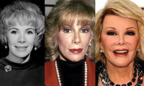 Image result for Joan Rivers before and after plastic surgery