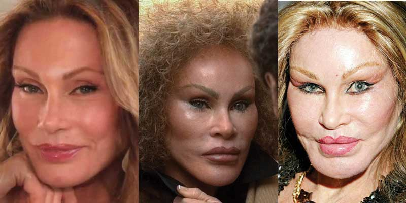Jocelyn Wildenstein Plastic Surgery Before and After 2019