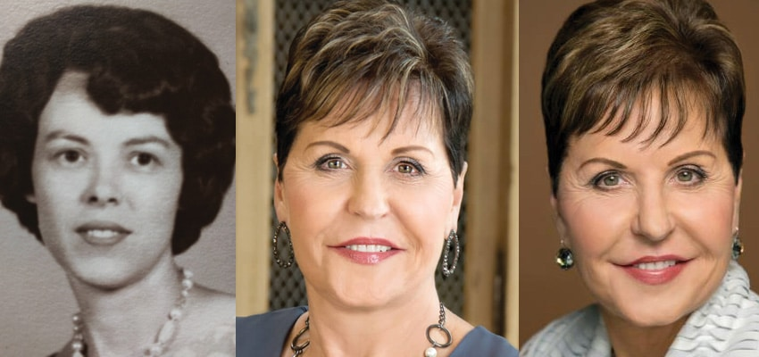 Joyce Meyer Plastic Surgery Before and After 2019