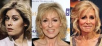 judith light plastic surgery