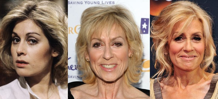 Judith Light Plastic Surgery Before and After 2019
