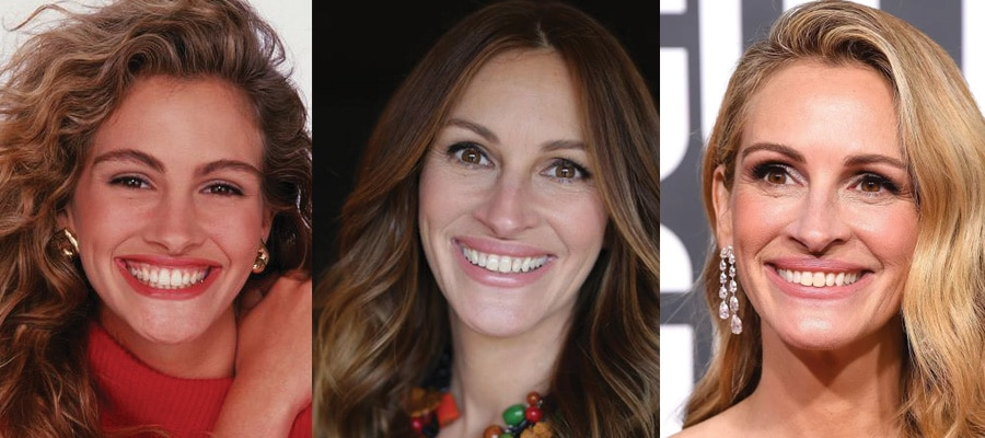 Julia Roberts Plastic Surgery Before and After 2020