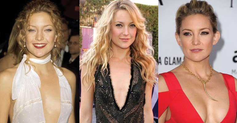 Kate Hudson Plastic Surgery Before and After 2017