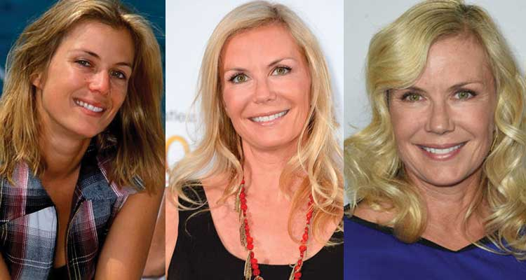 Katherine Kelly Lang Plastic Surgery Before and After 2018