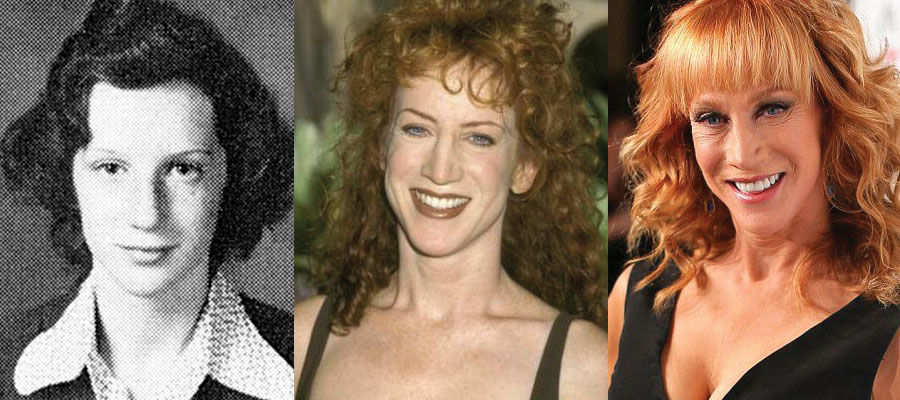 Kathy Griffin Plastic Surgery Before and After 2020