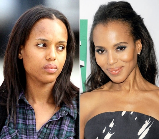 Kerry Washington Plastic Surgery Before and After 2018