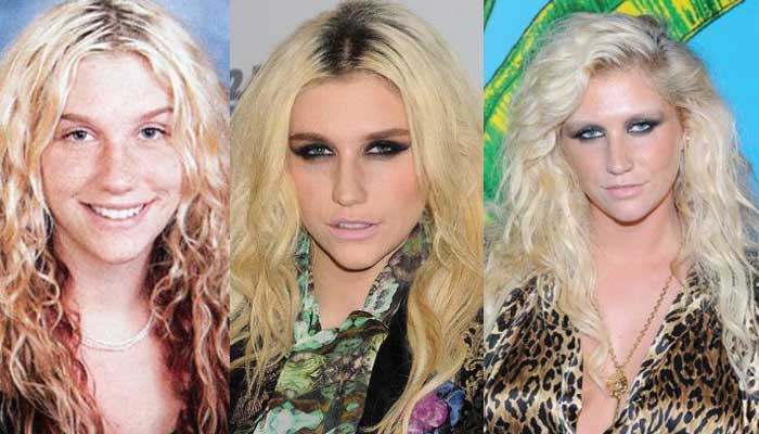 Kesha Plastic Surgery Before and After 2017