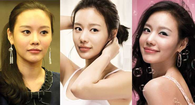Kim Ah Joong Plastic Surgery Before and After 2017
