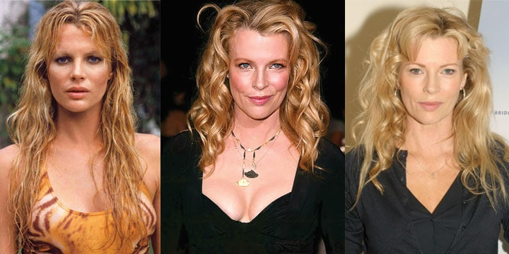 Kim Basinger Plastic Surgery Before and After 2021