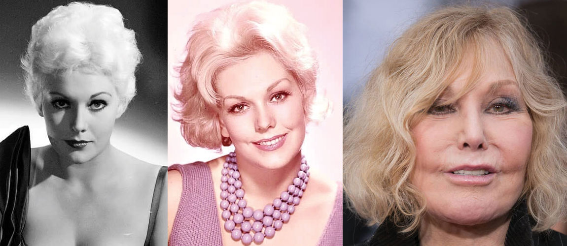 Kim Novak Plastic Surgery Before and After 2021