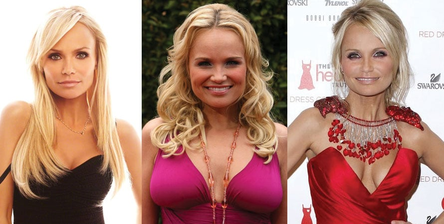 Kristin Chenoweth Plastic Surgery Before and After 2020