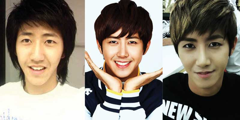 Kwanghee Plastic Surgery Before and After 2017