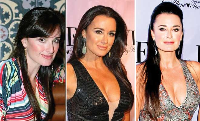 Kyle Richards Plastic Surgery Before and After 2017