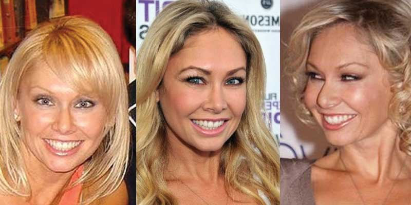 Kym Johnson Plastic Surgery Before and After 2018