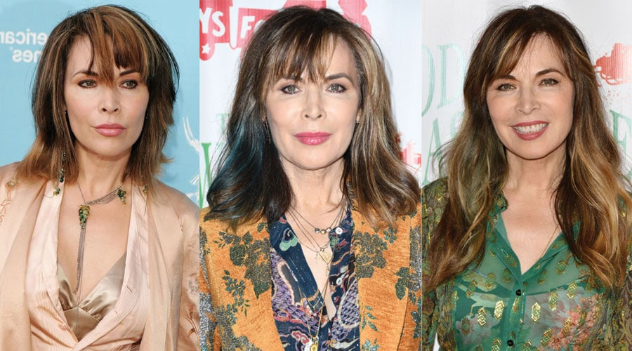 Lauren Koslow Plastic Surgery Before and After 2021